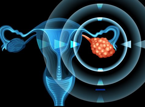 Ovarian Cancer symptoms and treatments